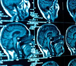 consultatie-neurologie-nervi-zenmed